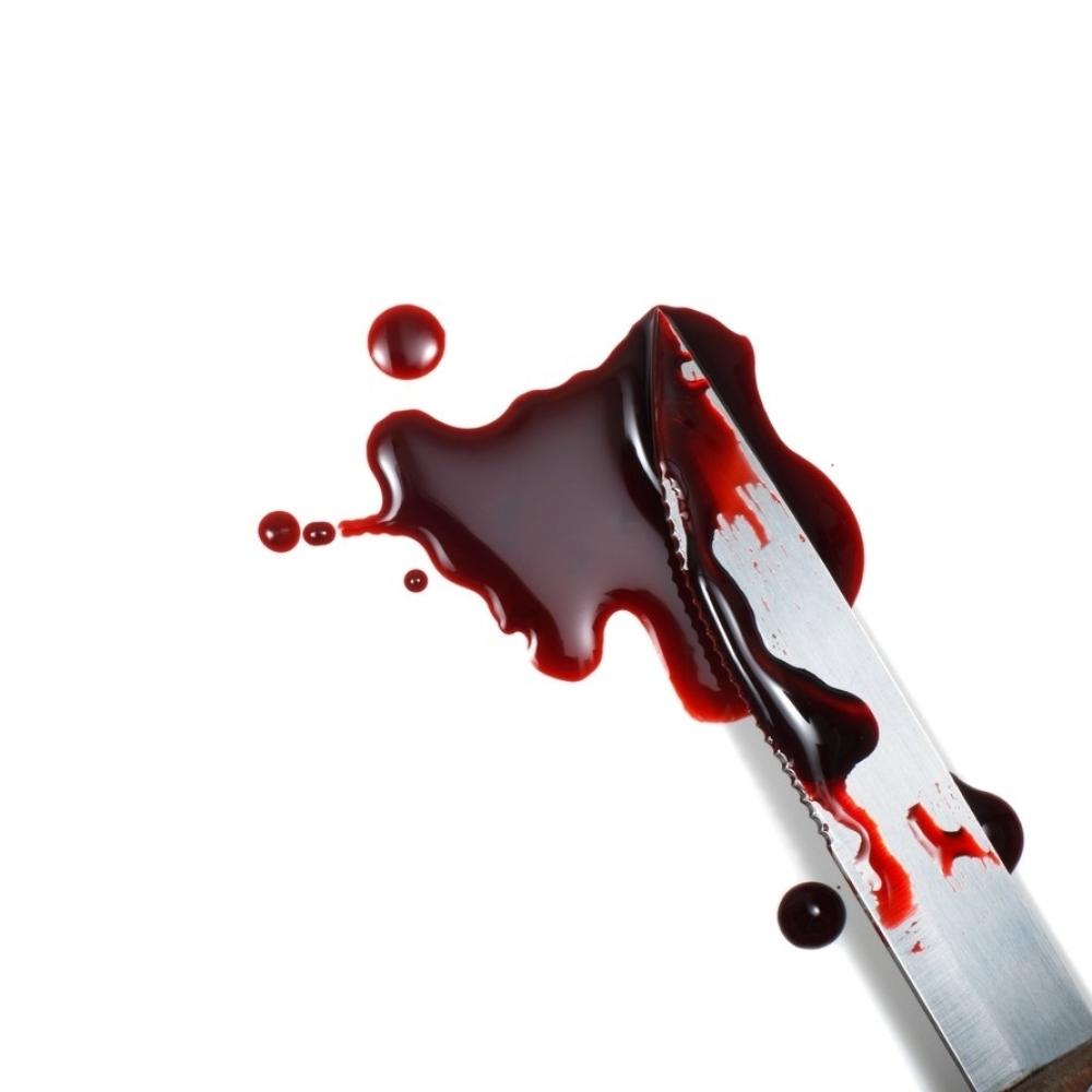 Dozvolila-momku-da-joj-pije-krv-pa-ga-izbola-nozem