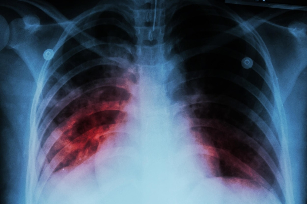 Tuberkuloza, TBC