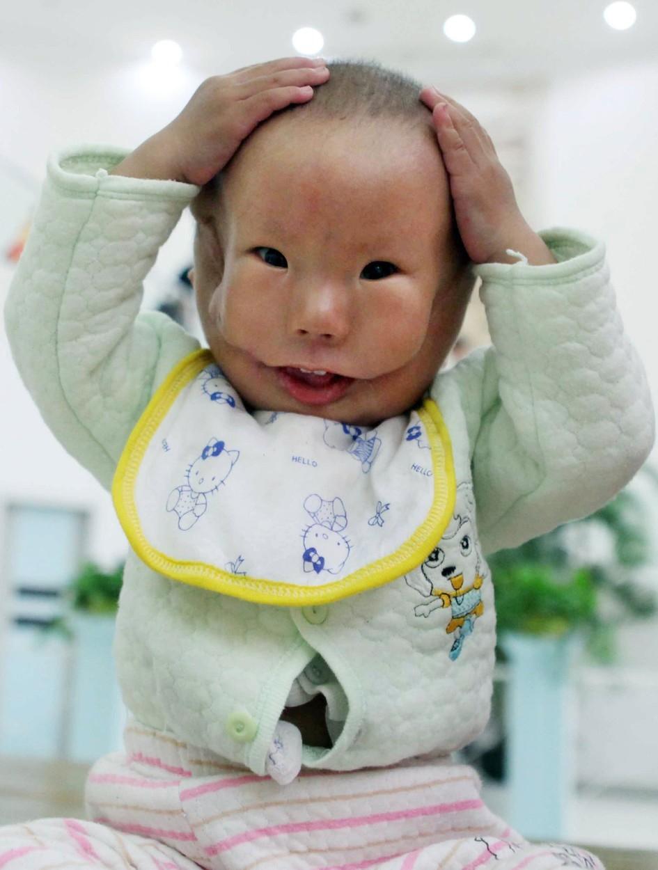 Decak-rodjen-sa-dva-lica-VIDEO
