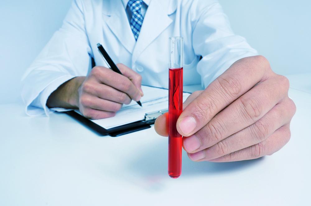 Krv krvna grupa transfuzija davanje krvi laboratorija analize