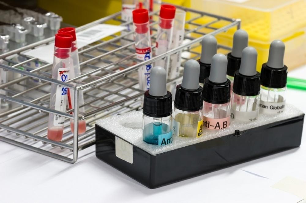 Krv, krvna slika, analize