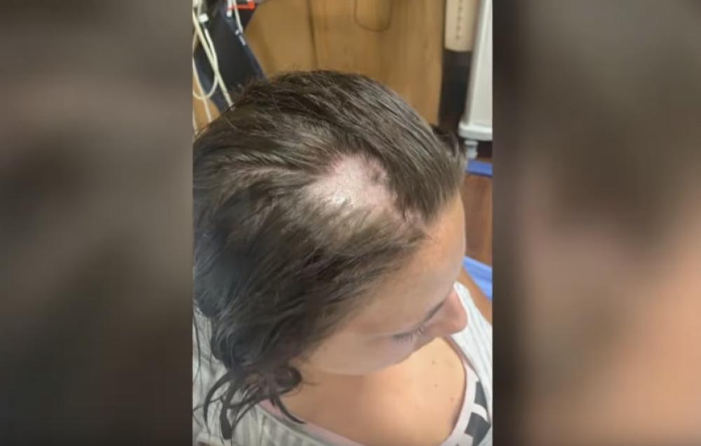 Ešli, opadanje kose, regenerator